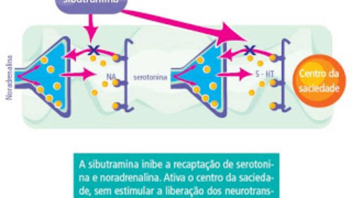 sibutramin